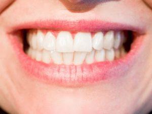 Dentist Merrillville